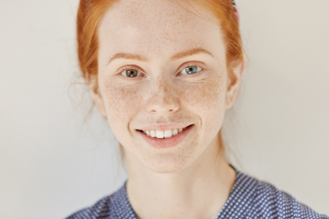 Heterochromia-Its-Causes-And-Types